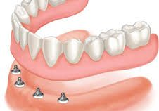 denture implants 1